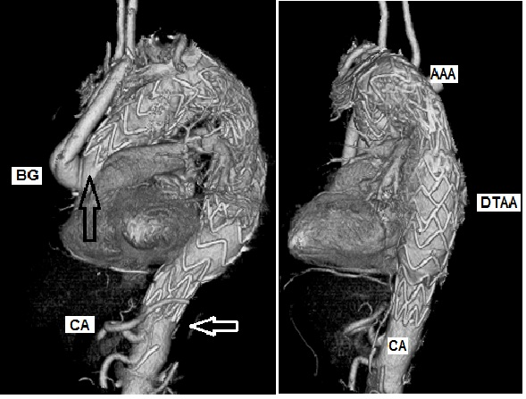Ismics Hybrid And Endovascular Management Of Complex Aortic Arch
