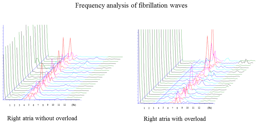 Ismics frequency analysis of fibirilattion waves for the surgical fcl might indicate the overload of atria and be helpful in predicting the electrical driving chamber of af this method could provide an alternative ccuart Gallery