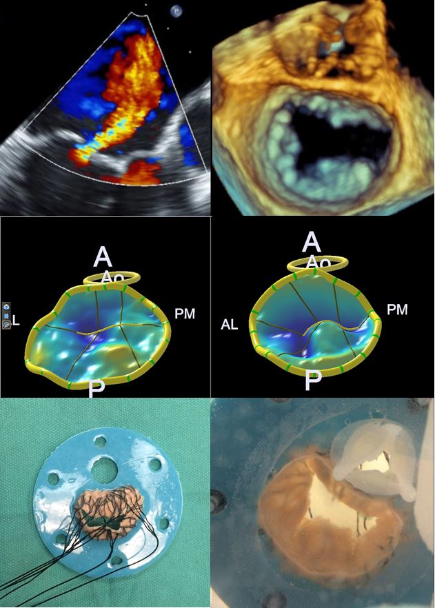 ISMICS - Patient-specific Dynamic 3d Mitral Valve Models For ...